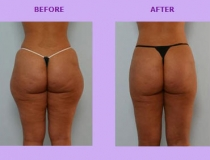 cellulite-treatment-1