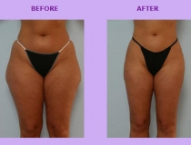 cellulite-treatment-2