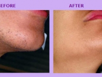 laser-hair-removal-2