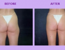cellulite-treatment-3
