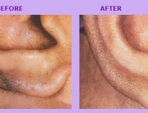 laser-hair-removal-3