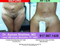 liposuction-tummy-tuck-17