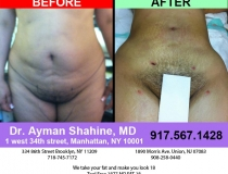 liposuction-tummy-tuck-2
