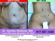 liposuction-tummy-tuck-5