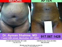 liposuction-tummy-tuck-8