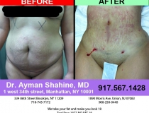 liposuction-tummy-tuck-9