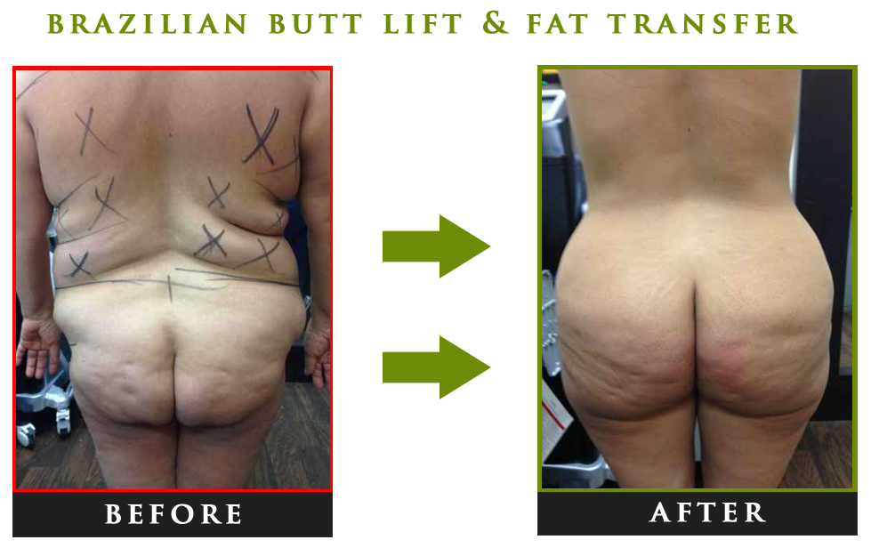 Fat transfer to butt, Brazilian butt lift nyc