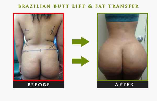 Brazilian Butt Lift NYC