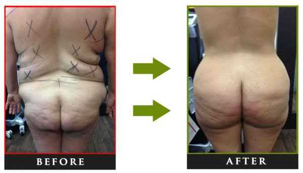Liposuction NYC, Liposculpture NYC, Smart lipo NYC, Laser lipo NYC