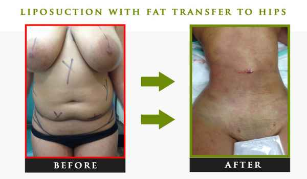 Fat transfer to hips nyc