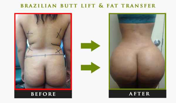 fat transfer to butt nyc